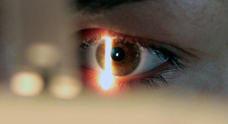 Kontaktlinsen Augenoptiker Halberstadt